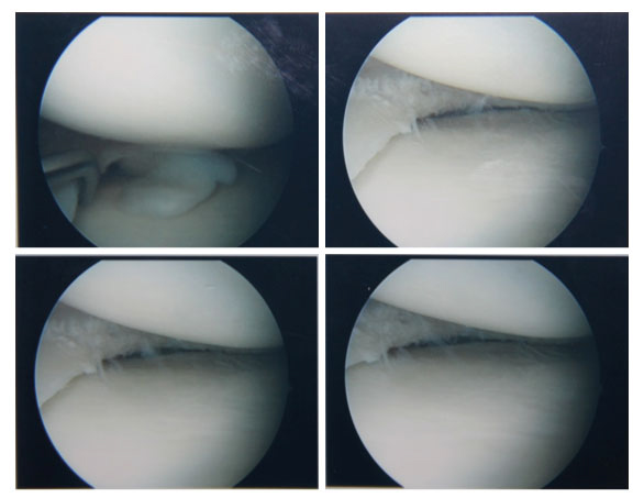 knee-cartilage-surgery